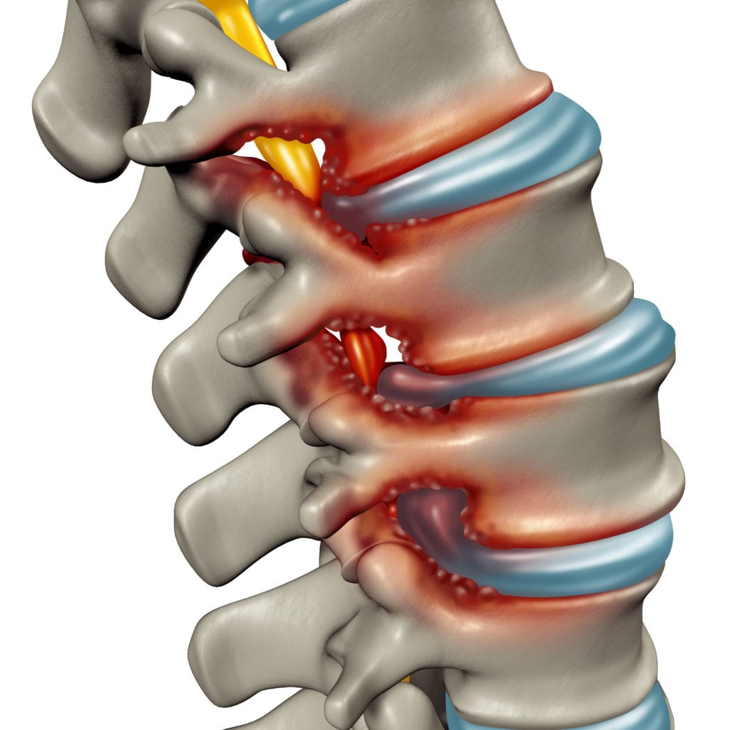 Stenosis - Back Pain and Neurosurgery Specialists in Fort Myers, FL