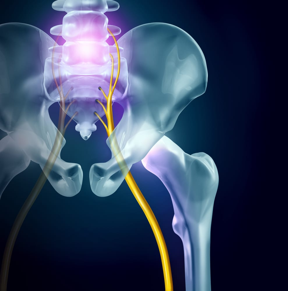 Sciatica - Back Pain and Neurosurgery Specialists in Fort Myers, FL