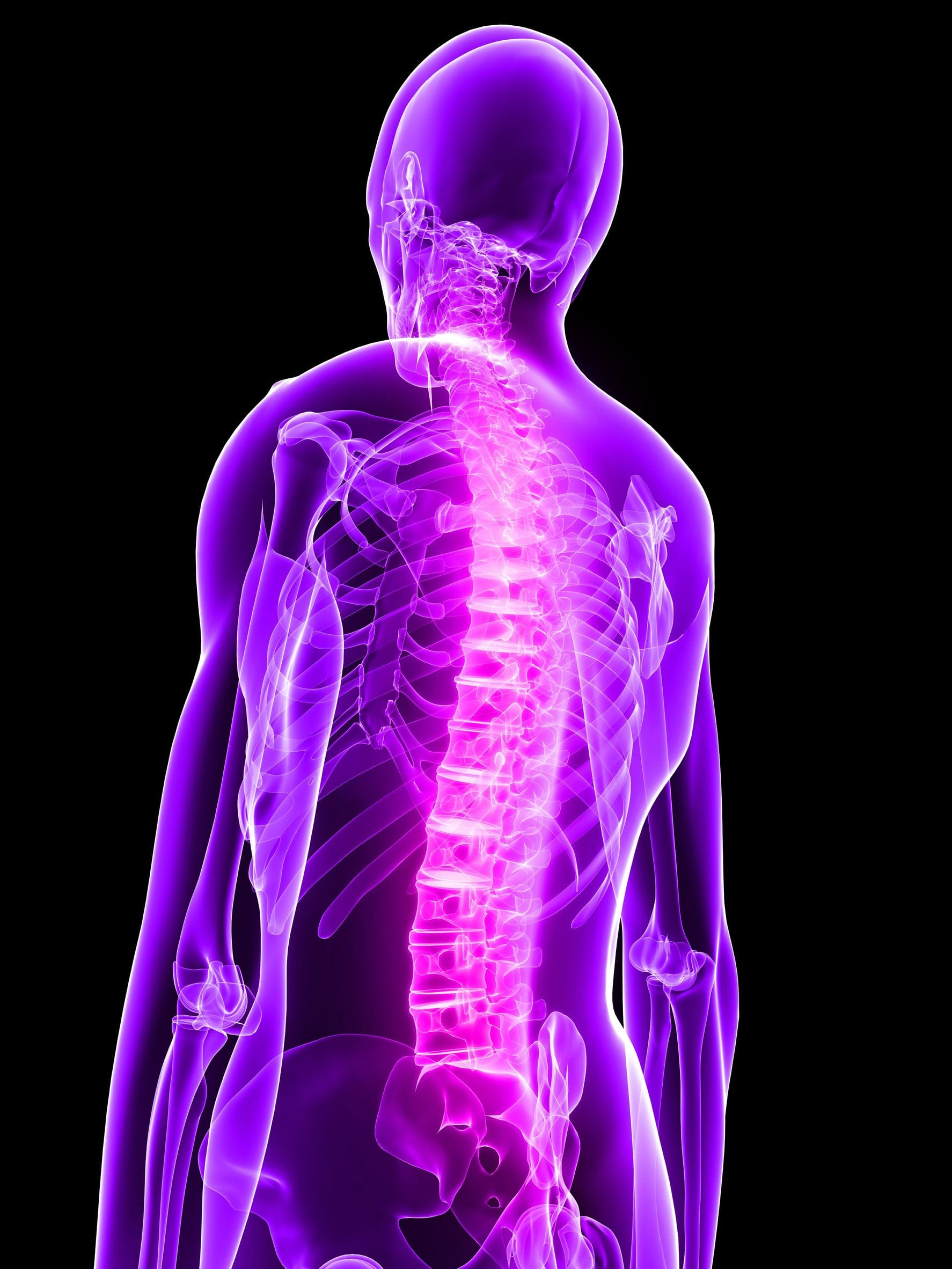 skeleton - Back Pain and Neurosurgery Specialists in Fort Myers, FL