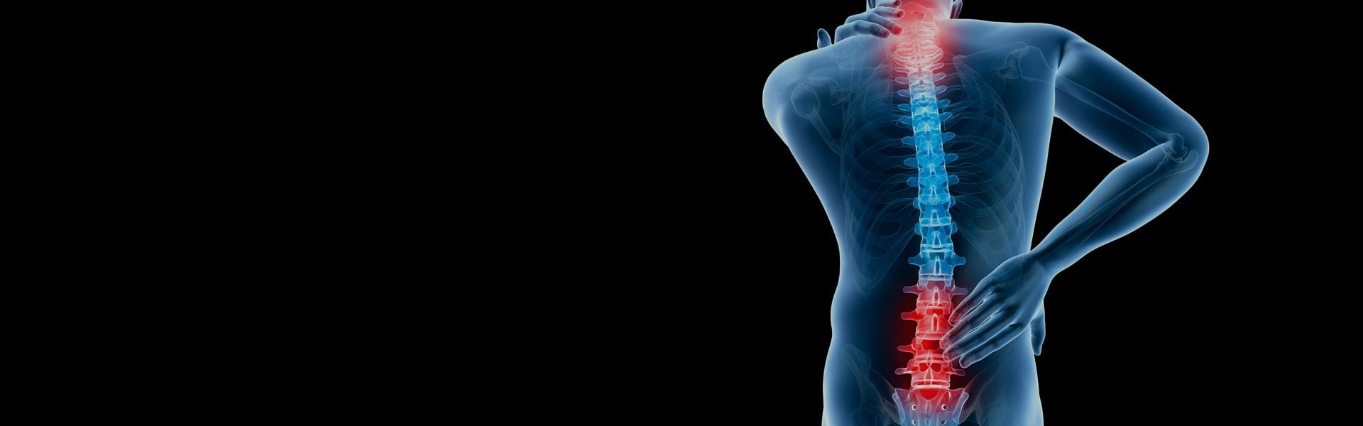 pain points - Back Pain and Neurosurgery Specialists in Fort Myers, FL